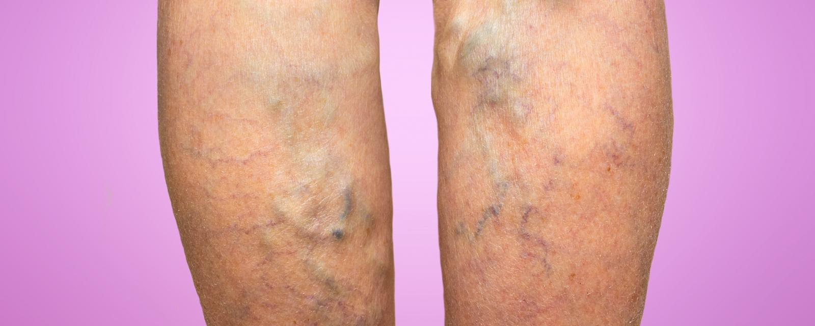 Five Myths About Spider and Varicose Veins - MercyOne Iowa Heart Vein Center